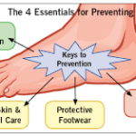 4 Keys for Prevention of Limb Loss