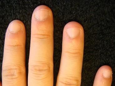 深爪自立矯正の効果 爪の変化画像