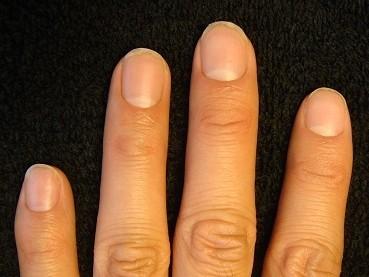 男性のゲスト 深爪自立矯正の変化画像