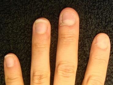 爪の病気でデコボコ 深爪自立矯正の変化画像