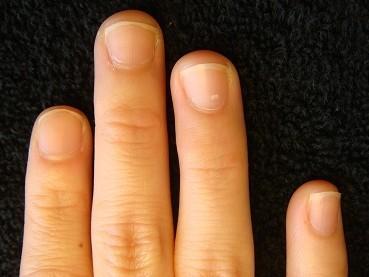 """深爪を治したら指先もスラッと綺麗になった深爪矯正変化画像"""""""