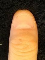 扇の様に横に広がった爪も縦長の綺麗な爪に変化した深爪矯正変化画像