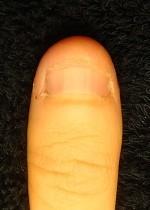 小さい爪が倍以上の長さになった深爪自立 矯正の変化画像