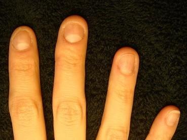 深爪自立矯正でイメージアップ 爪の変化画像