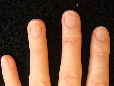 自爪を丈夫にするカイナメソッドの深爪自立矯正