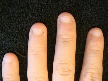 カイナメソッドの深爪矯正は爪が倍になり指先も変わる