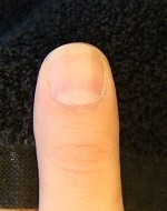 綺麗に伸びない爪を長く改善する深爪自立矯正