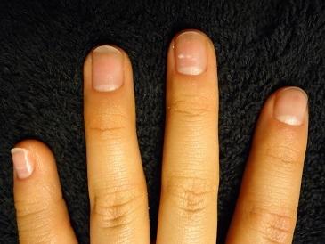 深爪自立矯正卒業 爪の変化画像 爪噛み