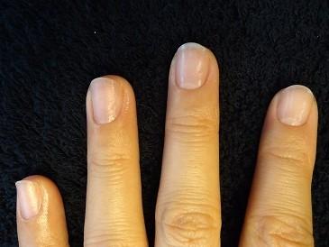 深爪自立矯正の変化画像