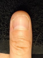 男性の深爪矯正の爪の変化画像