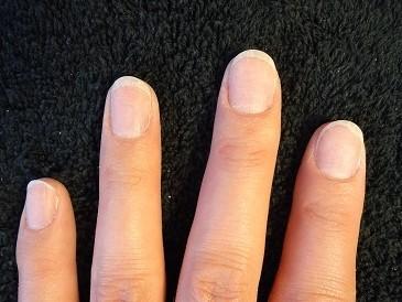 深爪は改善出来るのでジェルネイルを楽しもう