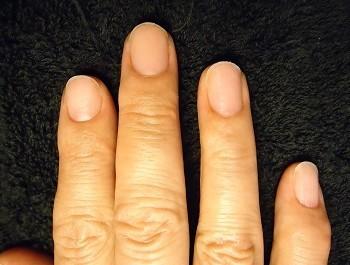 不健康になっていた爪も矯正で変化
