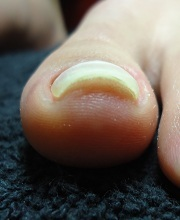 足の巻爪こんなに治った