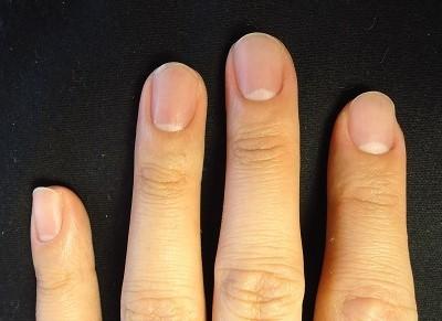 男性の指先の皮膚をむしる癖
