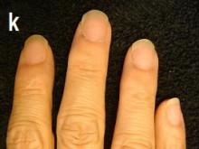 第3弾あなたの爪の症状は治ります