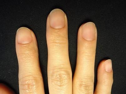 悩みがすべて改善した爪