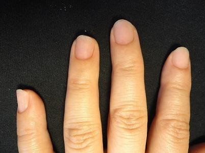 カイナメソッドによる深爪自立矯正卒業 爪の変化画像