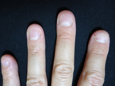 短期間で変化した深爪