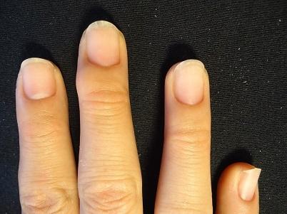 爪周りの皮をむしる癖