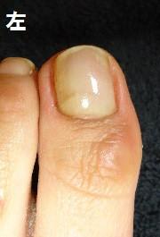 体重を支える大切な足の爪