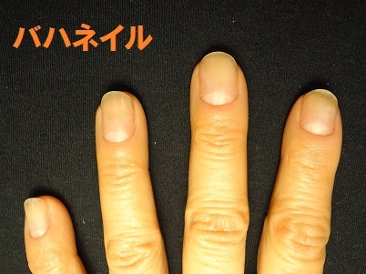 カイナメソッドによる深爪自立矯正を卒業された方の爪の変化画像