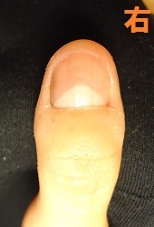 """爪をむしる癖ででこぼこ爪になってしまった方の深爪矯正変化画像"""""""""""