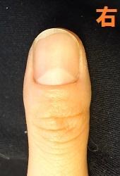 爪をむしる癖ででこぼこ爪になってしまった方の深爪矯正変化画像