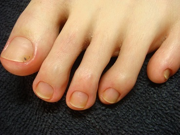 爪をむしる癖を解決した足の深爪矯正終了後の変化画像