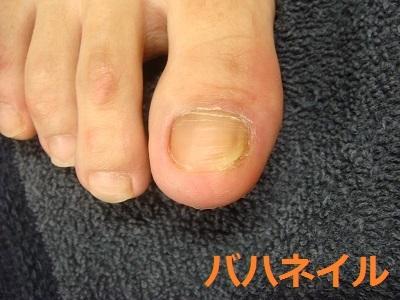 足の親指の深爪矯正カイナメソッドの変化画像
