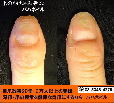爪のデコボコの自爪矯正(カイナメソッド)の変化画像