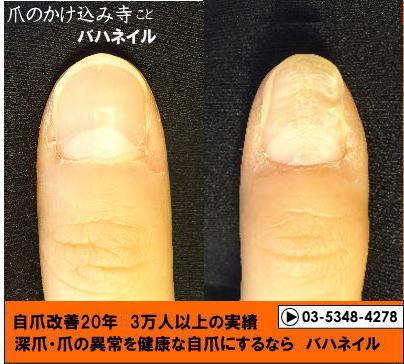 爪のデコボコの自爪矯正の変化画像