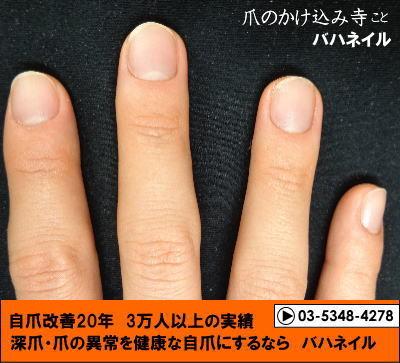 爪噛みの男性の深爪矯正の変化画像