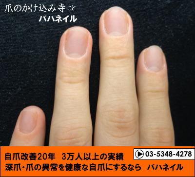 バハネイルの深爪矯正で深爪を治そう