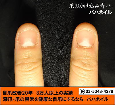 カイナメソッドの深爪矯正で爪噛みを治そう