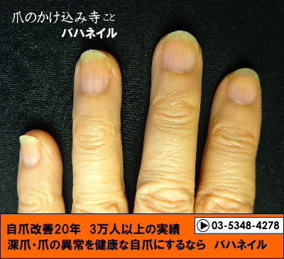 深爪矯正の爪の変化画像