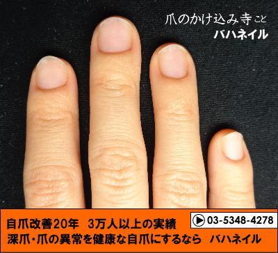 深爪矯正(カイナメソッド)の変化画像!爪噛み