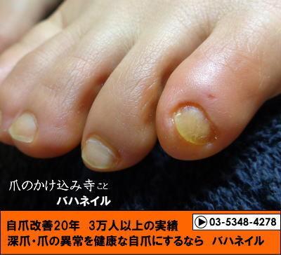 足の小指の爪がキレイに生えない(ノД`) カイナメソッドによる深爪自立矯正
