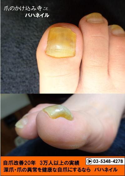 足の親指の爪が分厚いのは爪甲鉤湾症