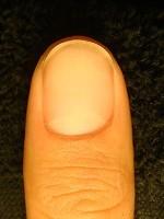 深爪自立矯正で指もスリム!爪の変化画像