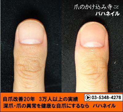 男性が通うネイルサロン カイナメソッドによる深爪自立矯正の変化画像