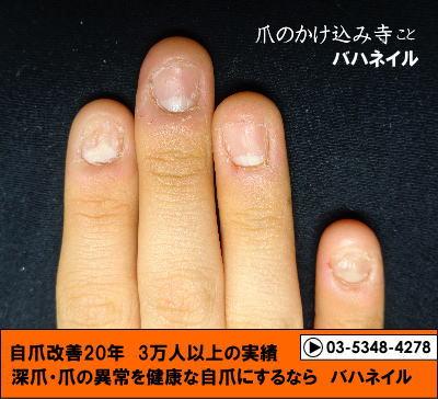高校生の深爪自立矯正 デコボコ 爪の変化画像とアンケート