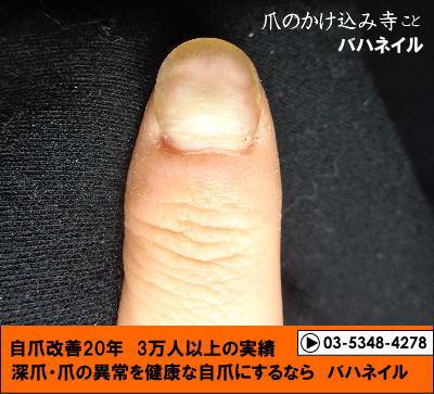 爪がデコボコの変化画像はカイナの保湿のおかげ