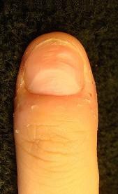 爪のデコボコ改善と爪の病気