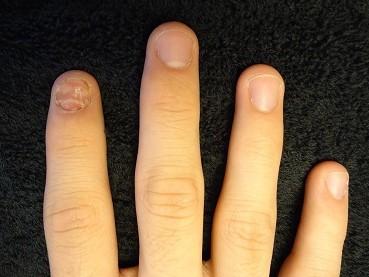 爪の病気のデコボコやガタガタ