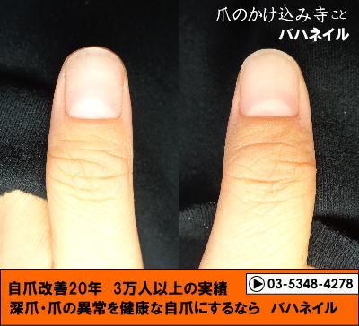 カイナメソッドによる深爪自立矯正で爪の形も整う 爪の変化画像