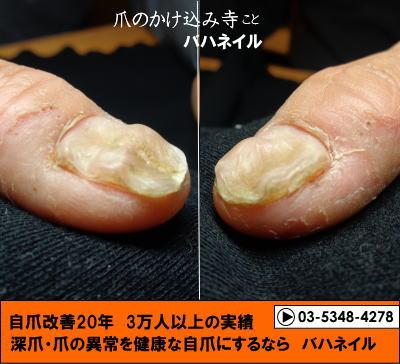 爪のデコボコの矯正変化画像