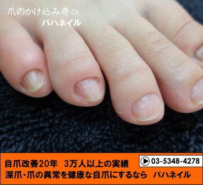 むしりすぎて爪が生えない人の足の爪の矯正