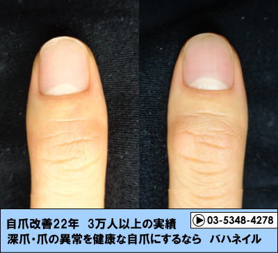 男性のゲストの深爪自立矯正