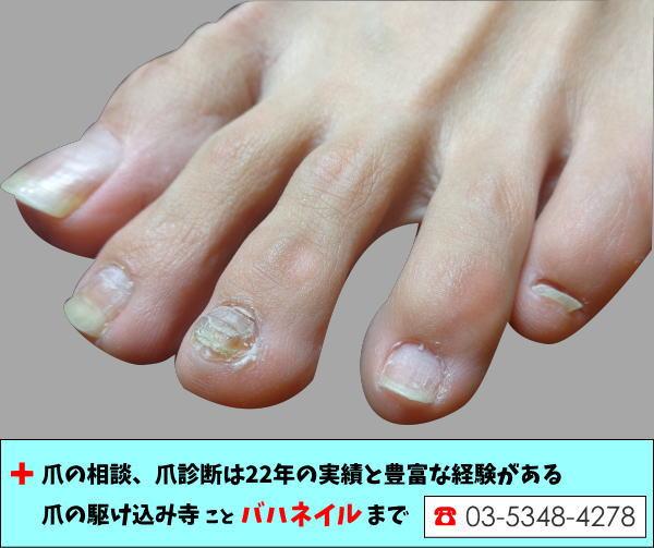 素足の爪とフラダンス