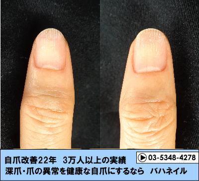 指先の爪が剥がれてくる症状(剥離)